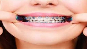 Vision Egypt News: - Orthodontics is a medical technique that has specific conditions and steps that cannot be accomplished in less than a year as a minimum.