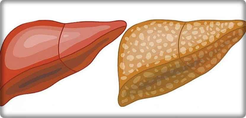 Medical study: prevention of fatty liver non-alcoholic