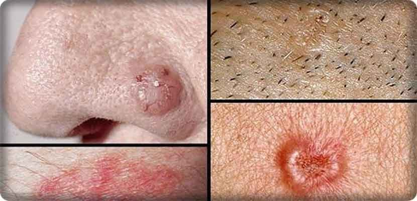 Signs of cancer