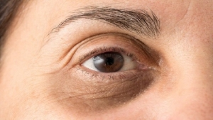 Habits that cause dark circles under the eyes